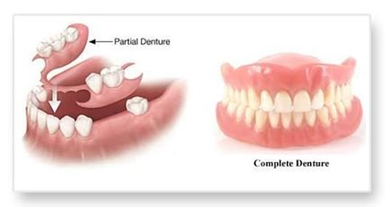Complete denture and partial denture