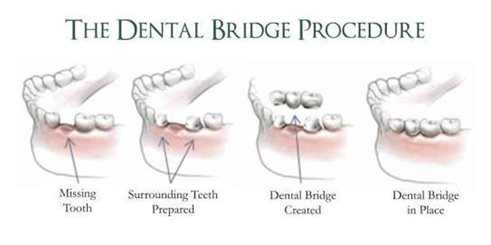 The dental bridge procedure