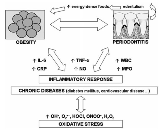 Relationship between obesity and periodontitis