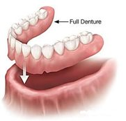 Full/complete denture