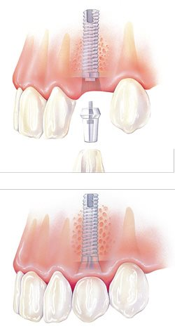 Figures 2a, b: Placement of an implant. Courtesy of Keystone Dental