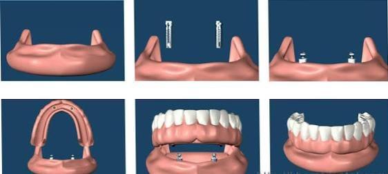 Over denture
