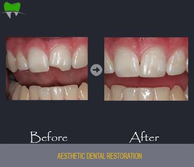Aesthetic dental restoration