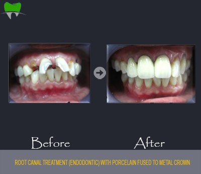 Root canal treatment with porcelain fused to metal crown