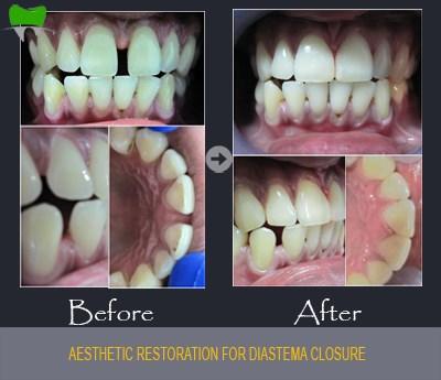 Aesthetic restoration for diastema closure