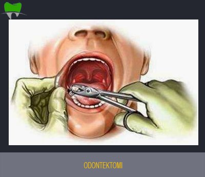 Dental extraction