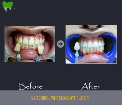 Bleaching / whitening with laser