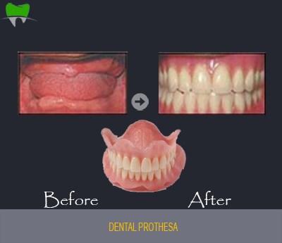 Dental prothesa
