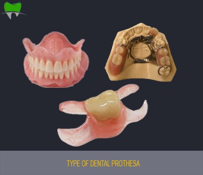Type of dental prothesa