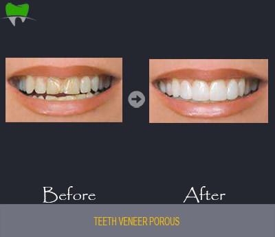 Teeth veneer porous