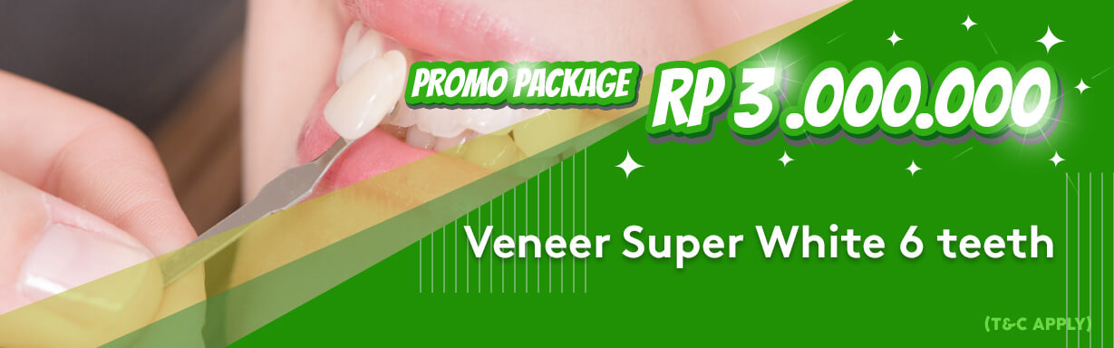 Jakarta Smile Promo Package Veneer Super White 6 Teeth