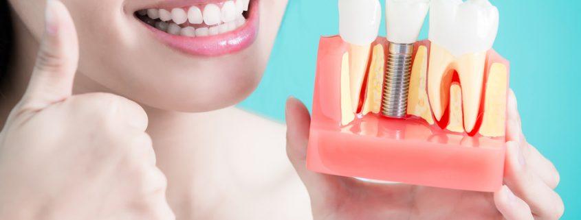 Manfaat Implan Gigi
