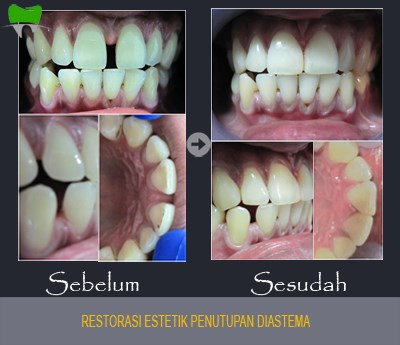 Restorasi Estetik Penutupan Diastema Gigi berlubang