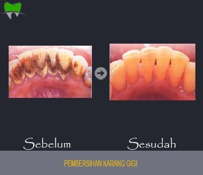 Pembersihan Karang Gigi sebelum dan sesudah