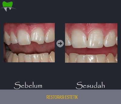 Restorasi Estetik gigi berlubang jakarta smile