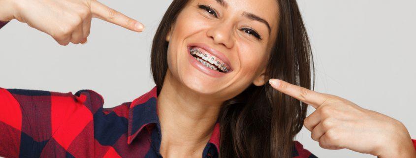 Manfaat Pemasangan Behel Gigi