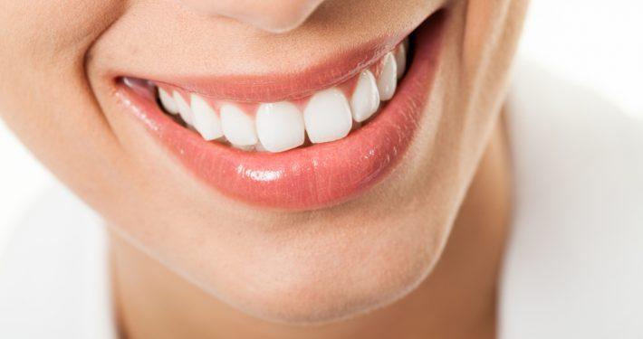 Efek Menggunakan Pemutih Gigi