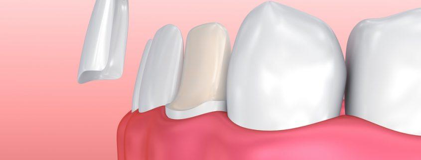 Pantangan Veneer Gigi