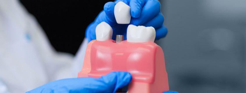 Penggunaan Implan Gigi Dalam Kedokteran