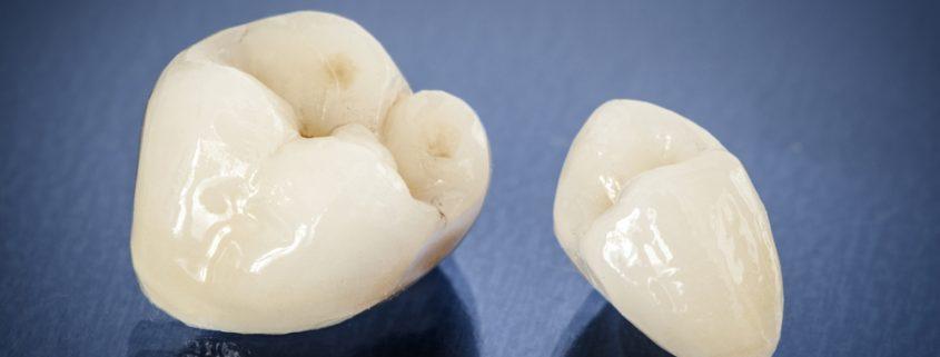 Membahas Seputar Mahkota Tiruan Pada Gigi