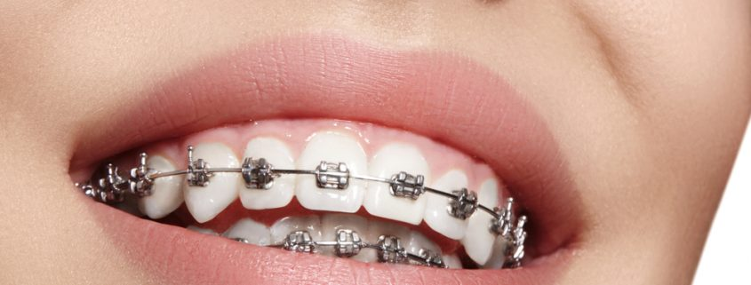 pikirkan Sebelum Pasang Kawat Gigi Behel Gigi