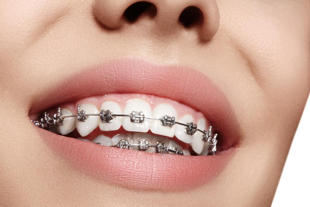 Hal Yang Harus Dipikirkan Sebelum Pasang Kawat Gigi